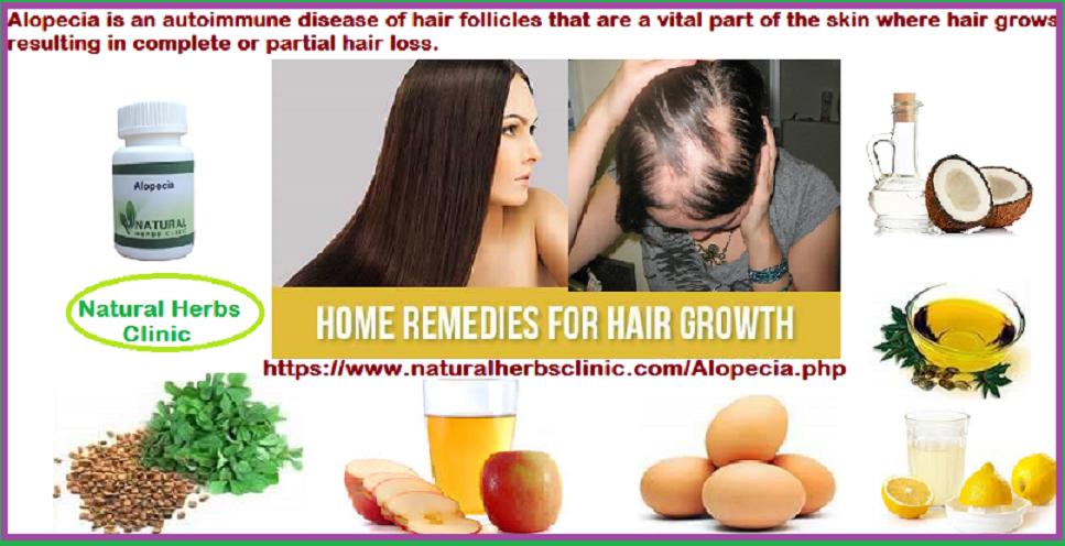 Alopecia Natural Treatment
