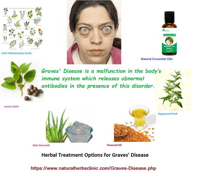 Graves' Disease Herbal Treatment