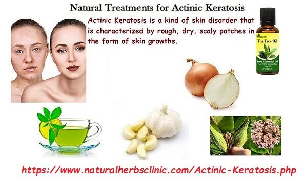 Natural Remedies for Actinic Keratosis