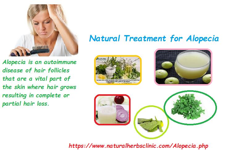 Natural Treatment for Alopecia