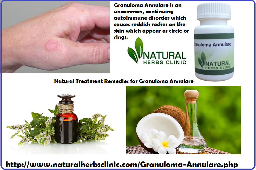 Herbal Remedies for Granuloma Annular | Causes, Treatment ...