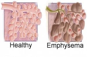 Emphysema Herbal Treatment