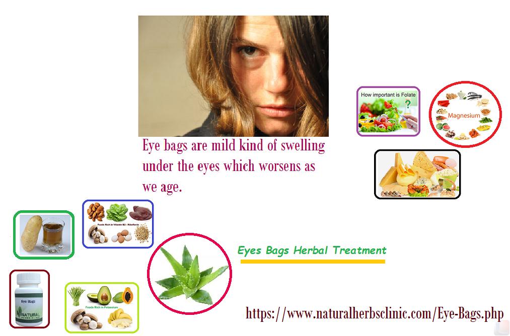 Eye Bags Herbal Treatment
