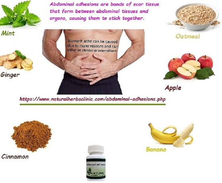 Abdominal Adhesions Herbal Treatment