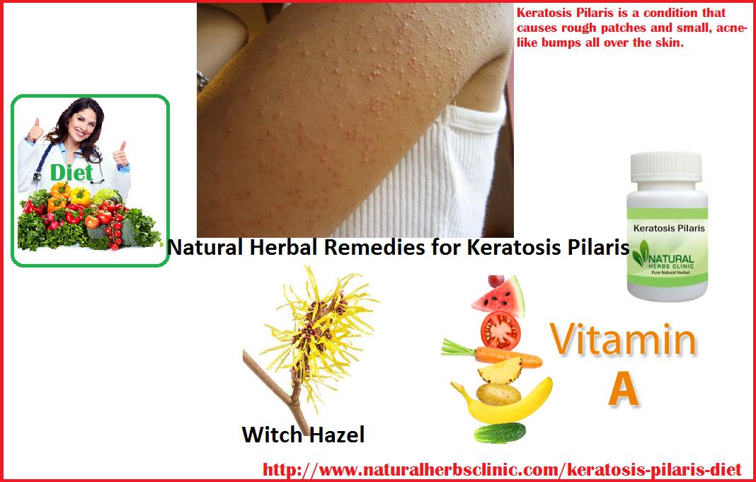 Natural Herbal Treatment for Keratosis Pilaris