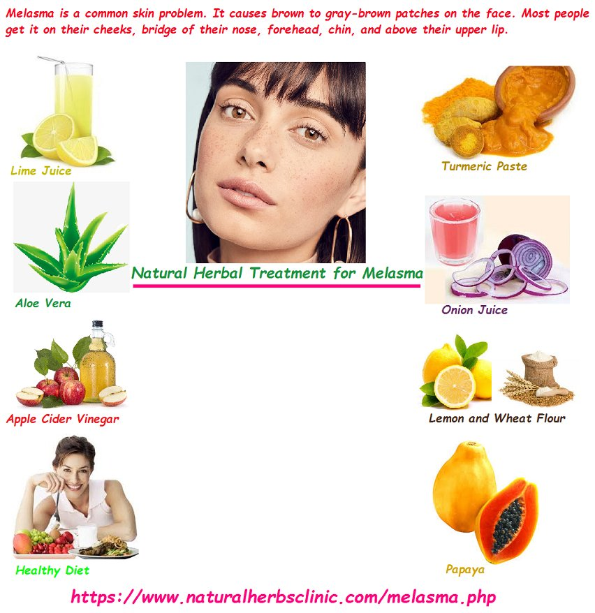 Melasma Herbal Remedies