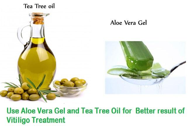 Aloe Gel and Tea Tree Oil