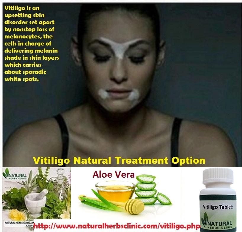 Natural Treatment of Vitiligo