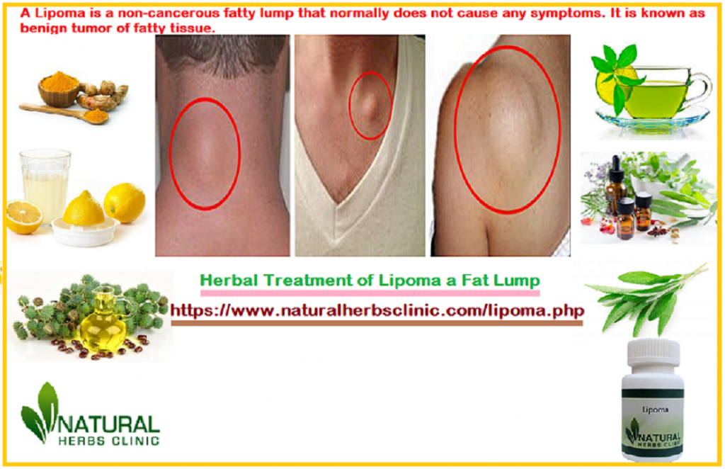 Lipoma Herbal Treatment