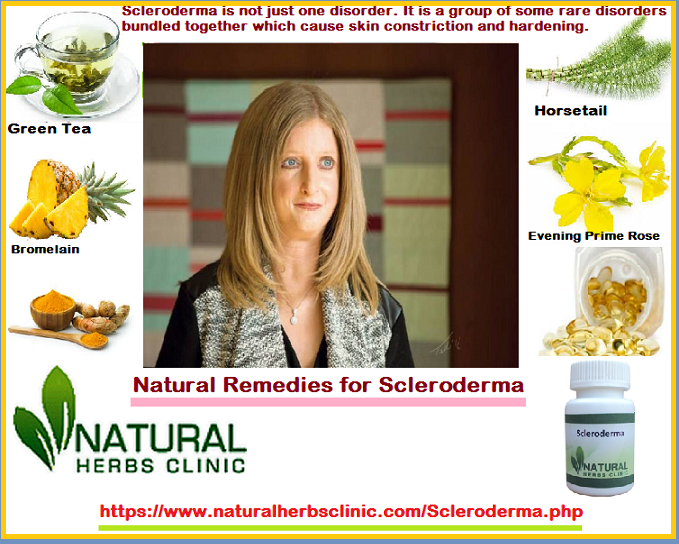 Natural Remedies for Scleroderma