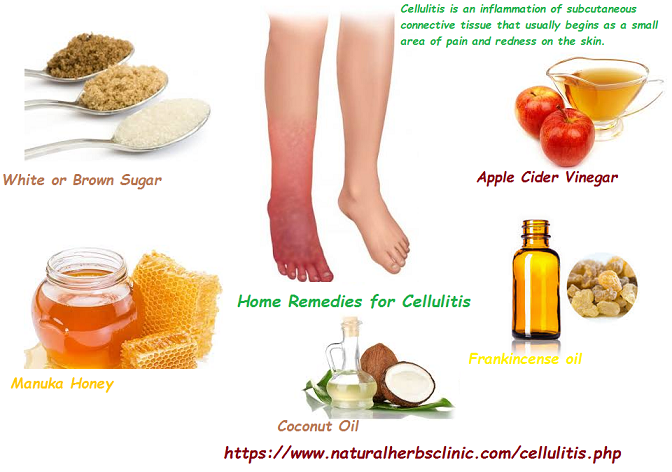 Home-Remedies-for-Cellulitis
