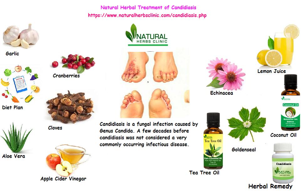 Natural Herbal Treatment of Candidiasis