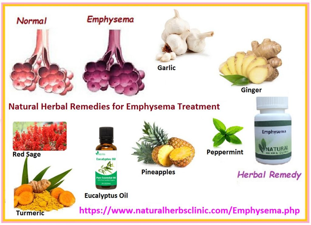 Natural Herbal Remedies for Emphysema Treatment