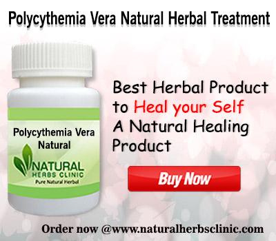 Herbal Treatment for Polycythemia Vera