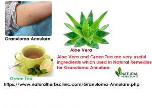 Aloe vera and green tea for Natural Remedies for Granuloma Annulare