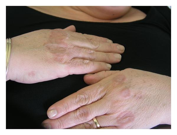 Granuloma Annulare Inflammatory Rash Skin Issues