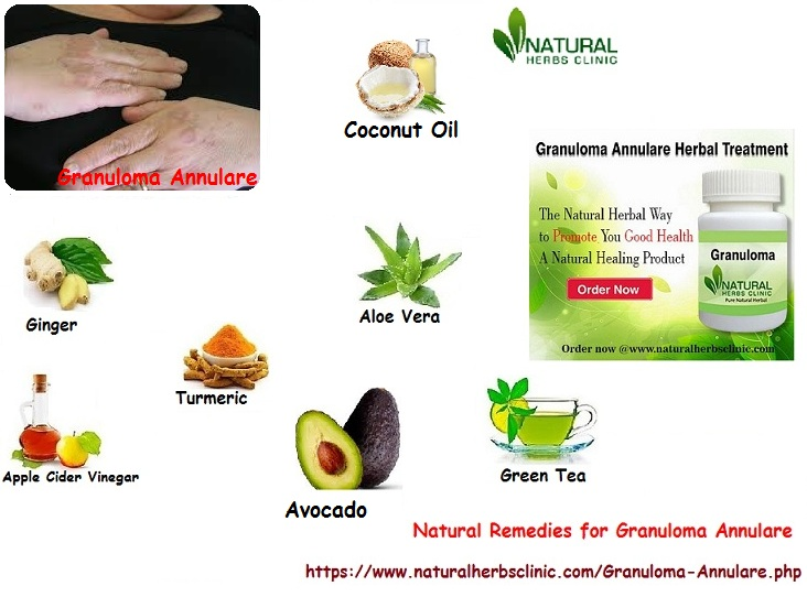 Natural Remedies for Granuloma Annulare