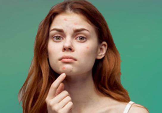 Acne on Face