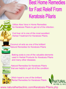 Natural Remedies for Keratosis Pilaris