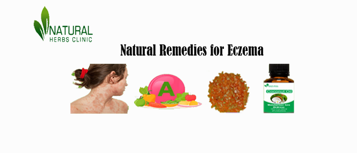 Herbal Treatment for Eczema