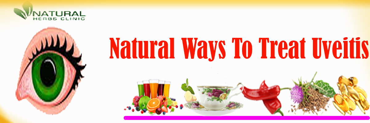 Natural Remedies for Uveitis