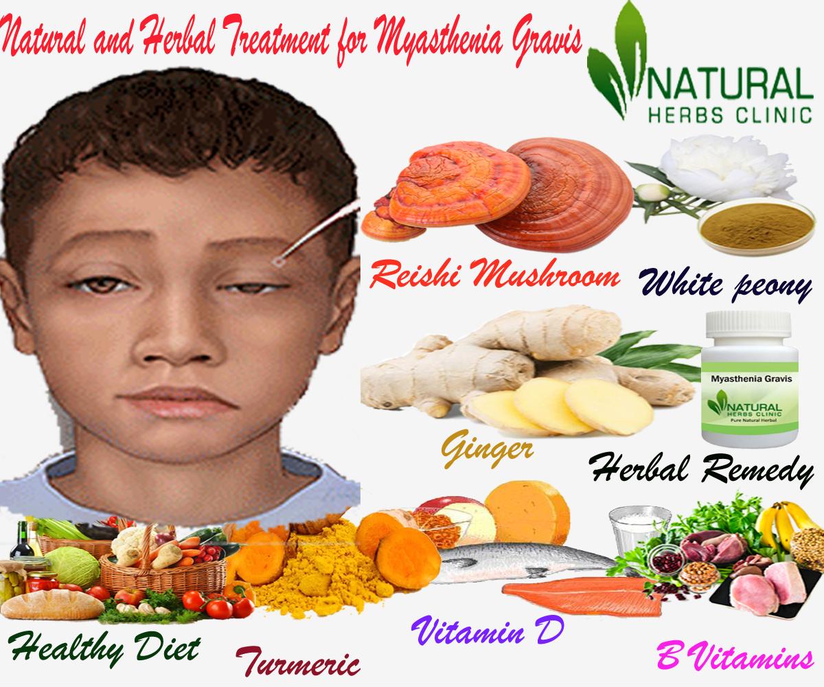 Herbal Treatment for Myasthenia Gravis