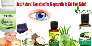 Natural Remedies for Blepharitis