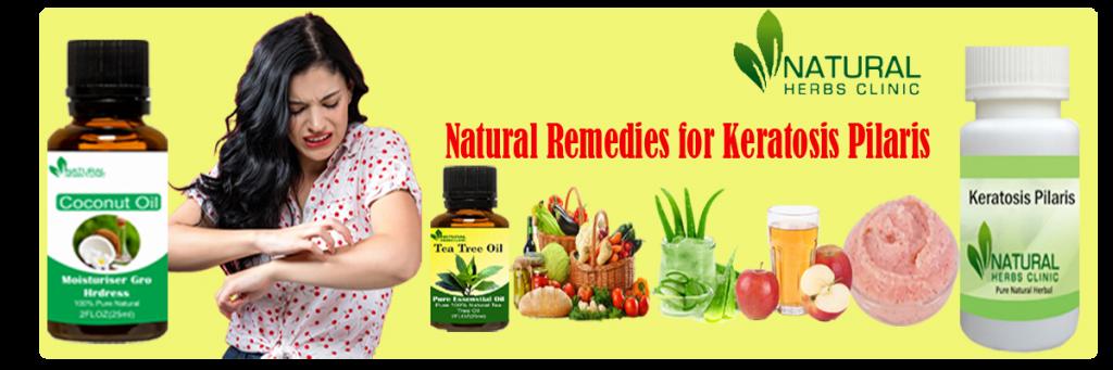 Natural Remedies for Keratosis Pilaris