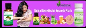Natural Remedies forKeratosis Pilaris