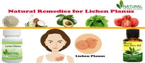 Natural Remedies for Lichen Planus