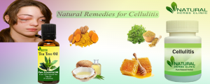 Natural Remedies for Cellulitis