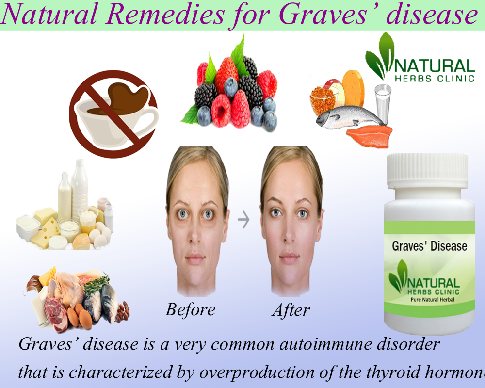 Natural Remedies for Graves' disease
