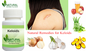Natural Remedies for Keloids