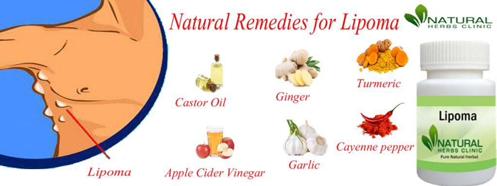 Natural Remedies for Lipoma