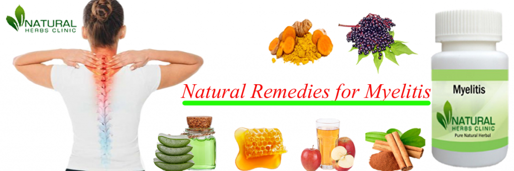 Natural Remedies for Myelitis