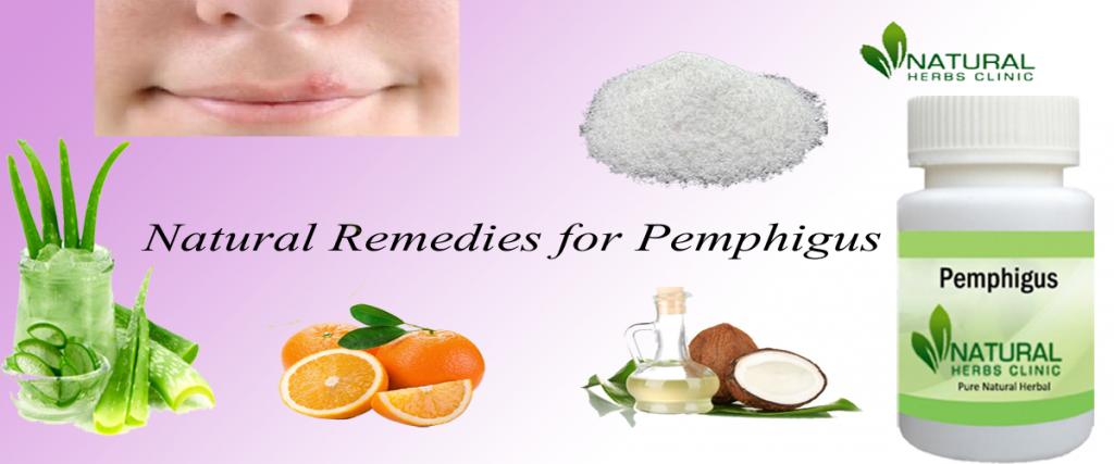 Natural Remedies for Pemphigus