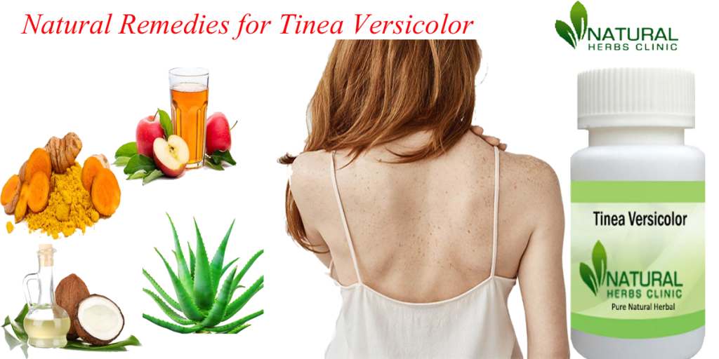 Natural Remedies for Tinea Versicolor