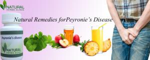 Natural Remedies forPeyronie's Disease