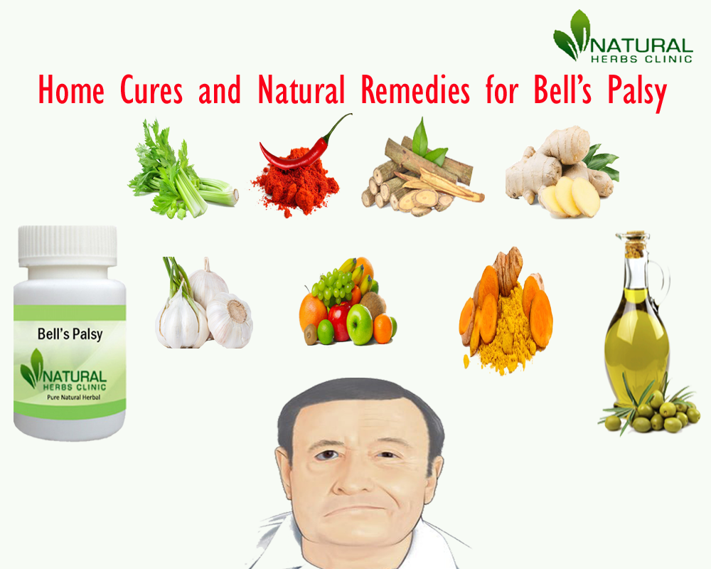 Natural Remedies for Bell's Palsy